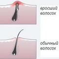 Вросшие волосы